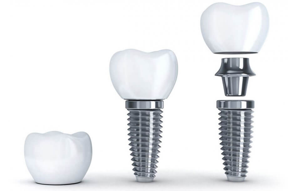 Why Choose Champagne Smiles for Dental Implants?