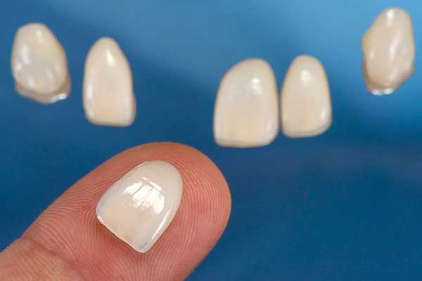 Porcelain Veneers in Monmouth County