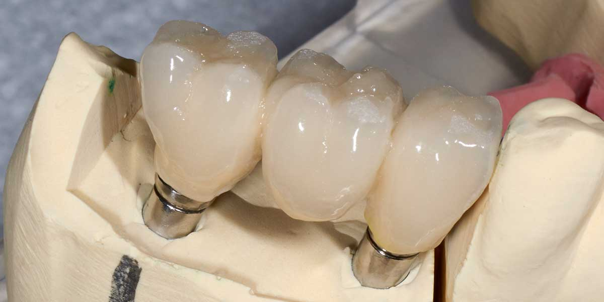 Dental Implant Supported Bridges in Morganville