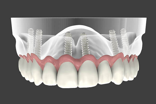 Implant Supported Dentures in Monmouth County, NJ