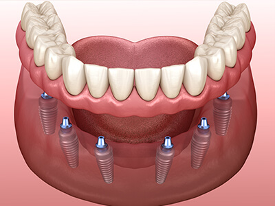Guided Implant Placement in Monmouth County, NJ