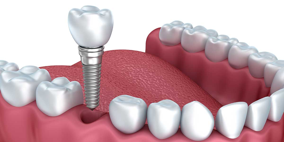 Single Dental Implants in Morganville