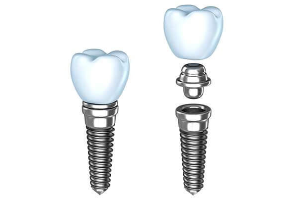 Single Dental Implants in NJ