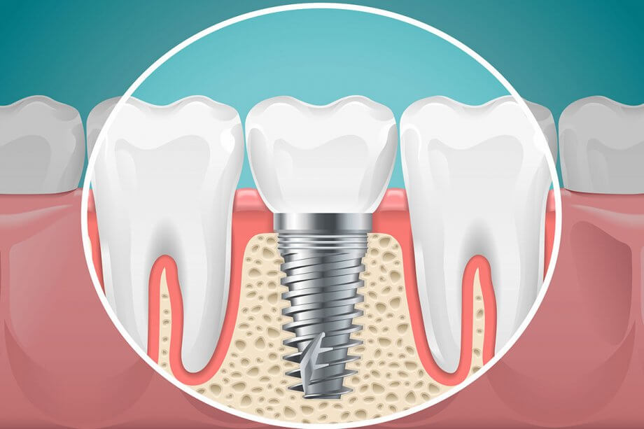 Dental Implants: Myths vs. Facts