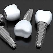 Dental Implants in Morganville, NJ