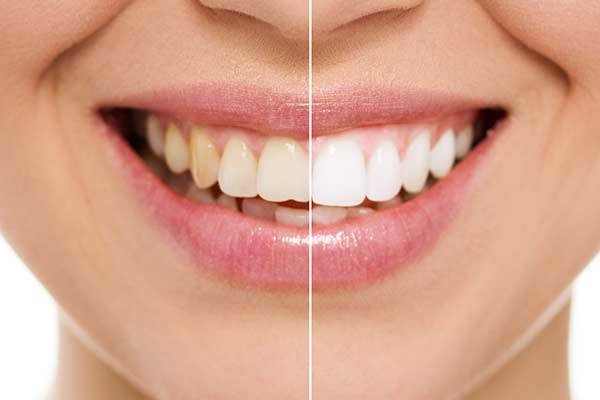 Teeth Whitening in Monmouth County
